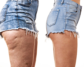 Cellulite in Studio City, CA