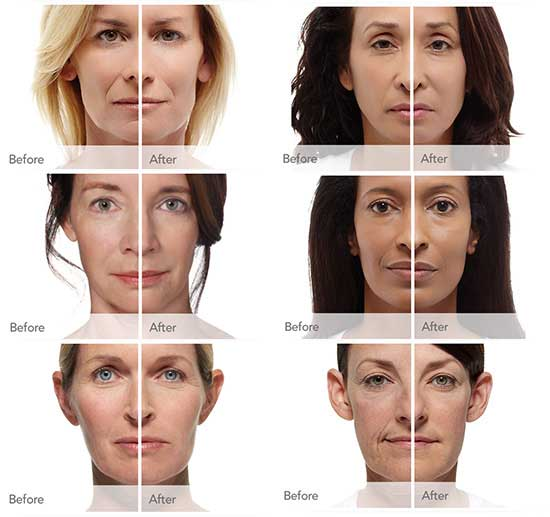 Radiesse Filler Injections in Dallas, TX