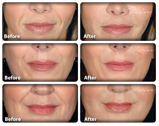 Restylane Injections in Tampa, FL