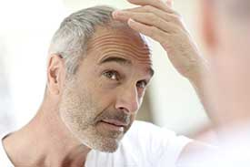 Stem Cell Hair Restoration in Arlington, VA