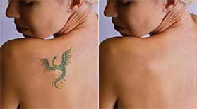 Tattoo Removal Roswell, GA