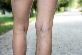 Varicose Vein Treatment Winter Park, FL