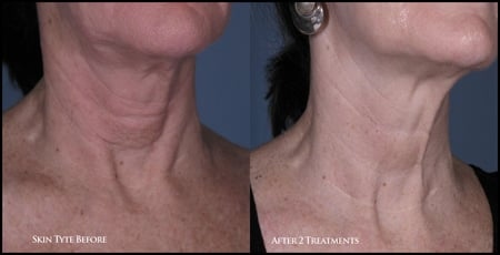 SkinTyte Skin Resurfacing Treatment by Sciton in Wilton Manors, FL