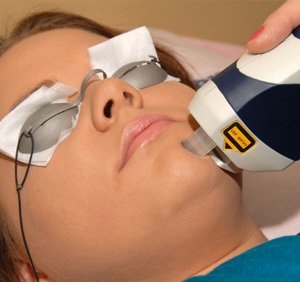 IPL Therapy in La Jolla, CA
