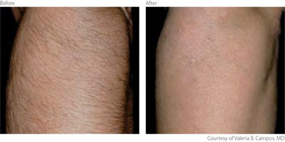 Lumenis LightSheer Hair Removal in Hurst, TX