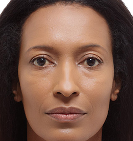 Female Radiesse After Results