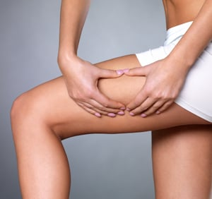 Synergie Cellulite Reduction Treatment in San Antonio, TX